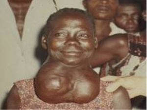 goiter - Experts Concerned About Americans' Iodine Levels