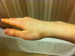 img 1365 - What are some of your weird kitchen injuries?